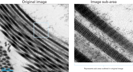 Clearly resolved collagen fibrils