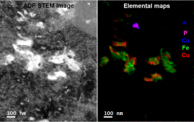 Fast EELS Analysis of Metals in a Blood Cell