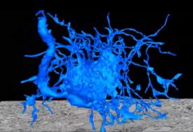 块结构的序列表面SEM像:为共聚焦显微镜使用者提供的3D超微结构研究工具