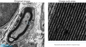 Clearly resolved myelin sheaths and collagen fibers