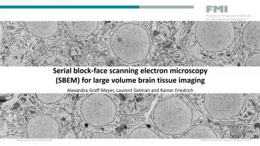 SBEM for large volume brain tissue imaging webinar